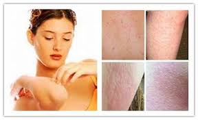 Itchy Skin No Rash: Pictures, Causes, Treatment and Home Remedies ...