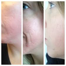 photo of makeup artists choice hstead md united states acne scars before