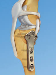 Standard Tplo Jig And Saw Guides Instruments For Tibial