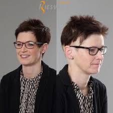 frontal fibrosierende alopezie