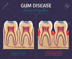 Dog Teeth Health Chart Teeth Infographic Gum Disease Chart