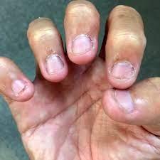 爪 を 噛む 癖 の ある 人