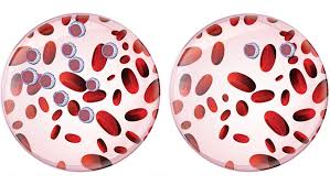 The Difference Between Acute And Chronic Leukemia