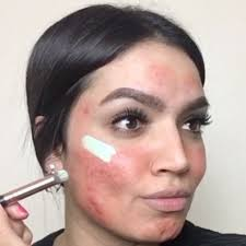 this makeup tutorial for covering up acne is making insram freak out