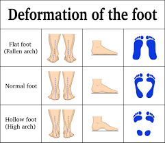 foot pain in the morning