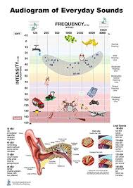 Hearing Banana Chart Audiogram Of Everyday Sound Poster 12x17inch Audiologist