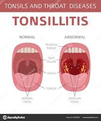 Tonsil Size Chart Tonsils Throat Diseases Tonsillitis Symptoms Treatment Icon