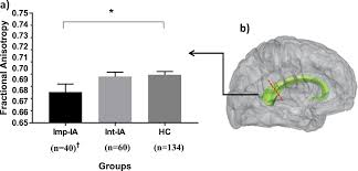 Impaired Illness Awareness In Schizophrenia And Posterior