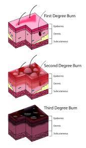 Burn Wikipedia