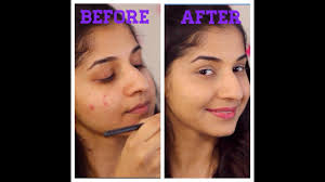 how to cover pimples acne skin