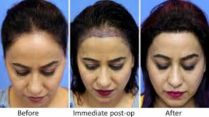 female hair transplant clinic in mumbai