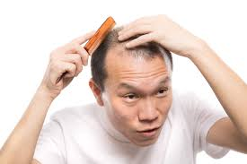 薄毛でも髪型を気にする男性無料の写真素材はフリー素材のぱくたそ