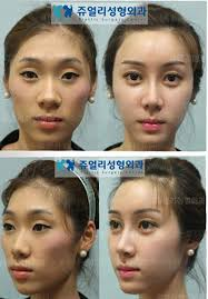 korean celebrity plastic surgery before after always interesting what you can find when you type in plastic surgery and other terms