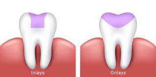dental onlay inlays and onlays boston ma dentist james m stein dmd