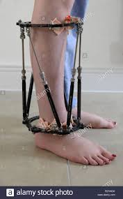 external fixator leg external fixator stock photos leg external fixator stock
