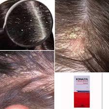 Медицинска козметика за дерматит,псориазис,кокоши трън,брадавици София |  adbgt-cosmo
