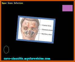 jaw pain relief from sinus infection