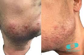 a dermatologist s tips for ingrown hairs pseudofolliculitis barbae folliculitis face neck icd 10 l73 ingrown hairs along the jaw