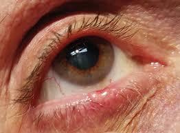 a close look at mon lid lesions
