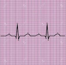Ecg Of Heart On Graph Paper