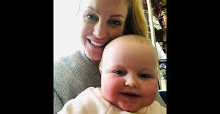 Mom Posts Photo of Infant Battling Measles