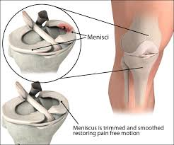 pain management for torn meniscus