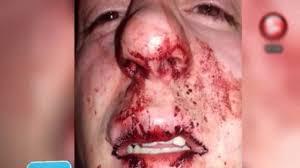 Resultado de imagen para foto trompada rotura tabique nasal