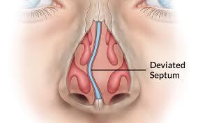 deviated septum surgery septoplasty