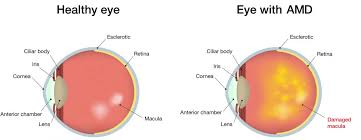 what are the signs of amd