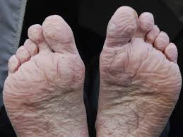 what you should know about trench foot a look at trench foot a condition that happens when the feet are exposed to damp and moisture for an extended time