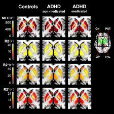 Adhd Medication Comparison Chart 2013 Mri Technique Reveals Low Brain Iron In Adhd Patients