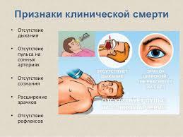 Реферат Клиническая смерть Причины Первая помощь  Реферат клиническая смерть причины
