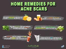 Popular home remedies