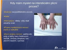Intersticiální Plicní Procesy V Otázkách A Odpovědích Pdf