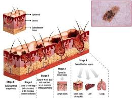 Skin Cancer Chart Skin Cancer Illustration Anatomy System Human Body