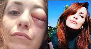 Giuliana Danzè mostra il volto tumefatto, l'ex concorrente di All Together  Now denuncia: «Io picchiata dal mio compagno»