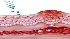 علاج الحكة الجلدية المزمنة وأهم وصفات طبيعية لعلاج الحكة المزمنة – زيادة