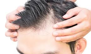 Cure For Male Pattern Baldness Delectable Male Pattern Baldness Causes And Treatment