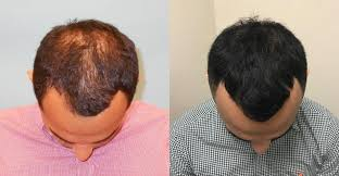 before and 1 year after acell prp hair loss therapy