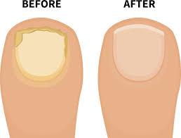 get rid of toenail fungus fast