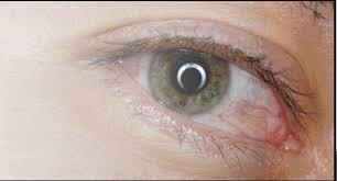 Optometric Management - Is it Allergy or Dry Eye?