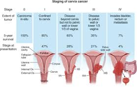 Image result for uterine cancer