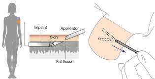 birth control implant how it works birth control implant effects advantages and disadvantages