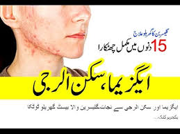 Skin Allergy or Eczema ka ilaj | Glasreen Wala Best Gharelo Totka ...