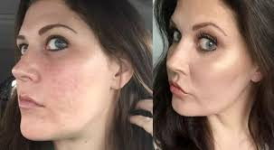 acne treatment infinite skin and laser