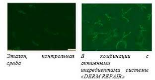 Изучаем свою кожу и разглаживаем морщины institut esthederm Украина Эталон контрольная среда В комбинации с активными ингредиентами системы derm repair