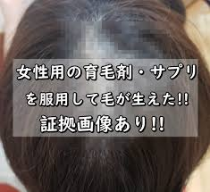 画像女性用の育毛剤サプリで毛が生えたつむじハゲに効果あり