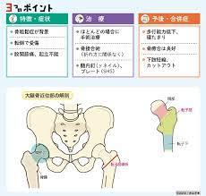 大腿 骨 転 子 部 骨折
