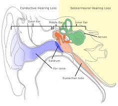 How To Read An Audiogram And Determine Degrees Of Hearing Loss