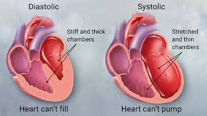 heart disease essay chapter congenital heart disease essay heart disease essay causes and symptoms outline